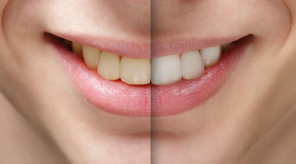 sbiancamento-dentale